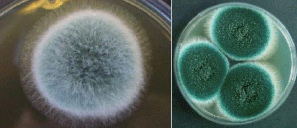 Так выглядят колонии грибков, которые были выращены на чашке при лабораторном исследовании - как правило, споры имеют зеленоватый оттенок