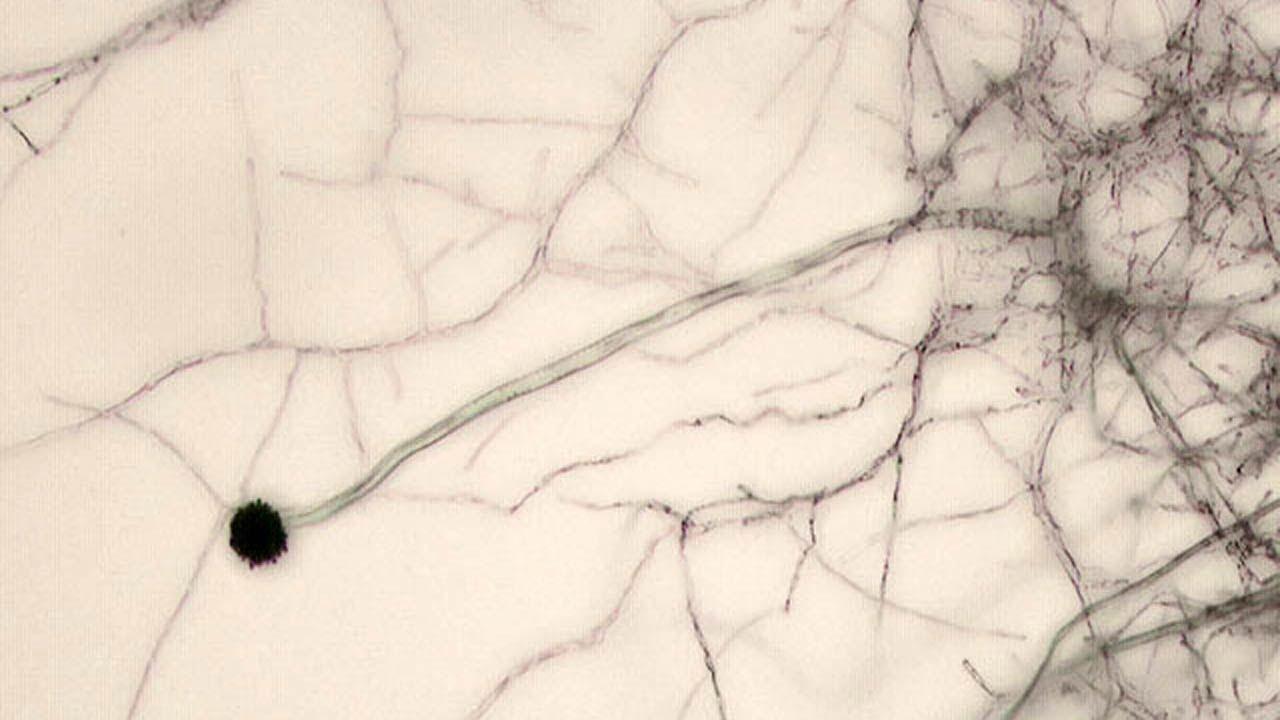 Гриб аспергилл под микроскопом